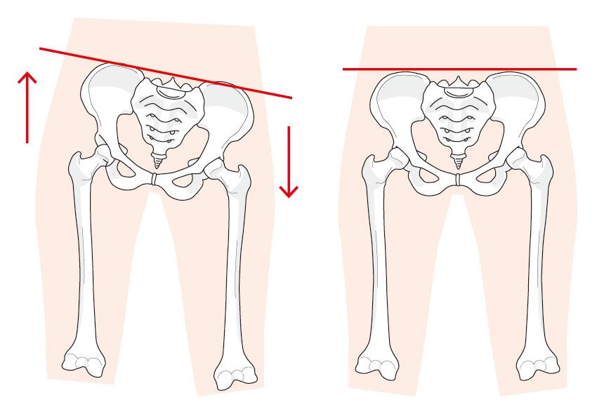 正常と歪んだ骨盤