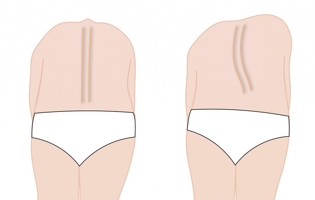 側弯症の診断テスト