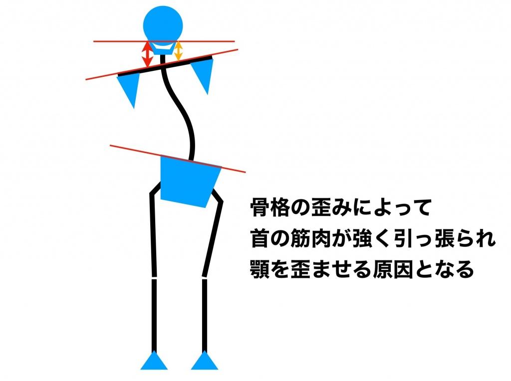 骨盤と背骨の歪み