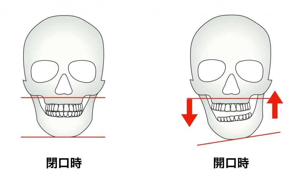 顎関節の異常