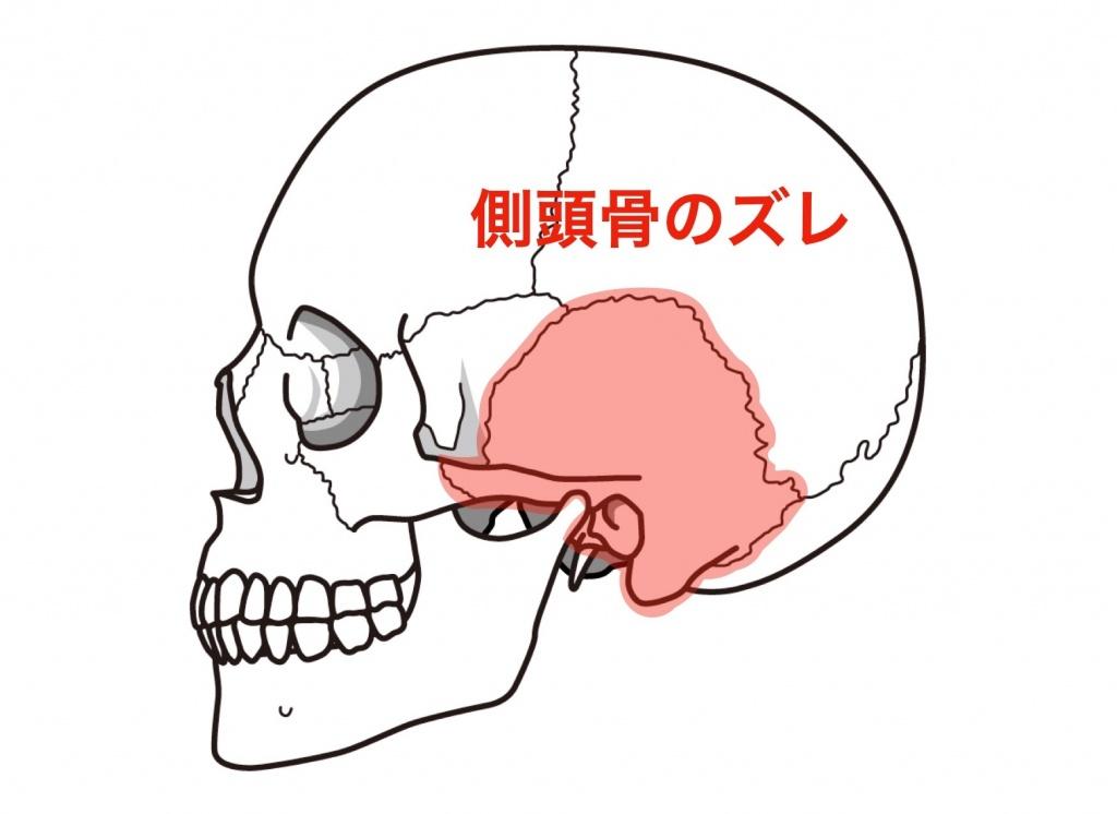 横から見た頭蓋骨