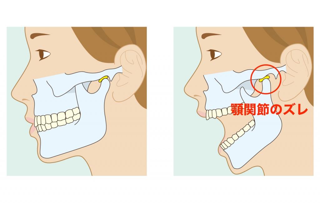 横から見た顎関節
