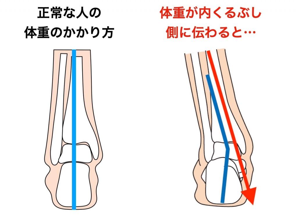 足関節の比較図
