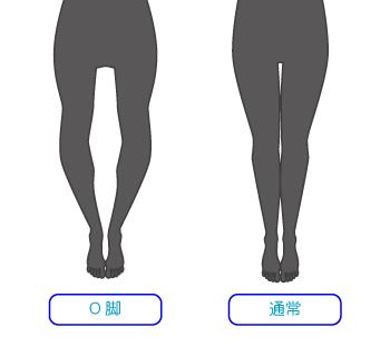 O脚の人の脚のシルエット
