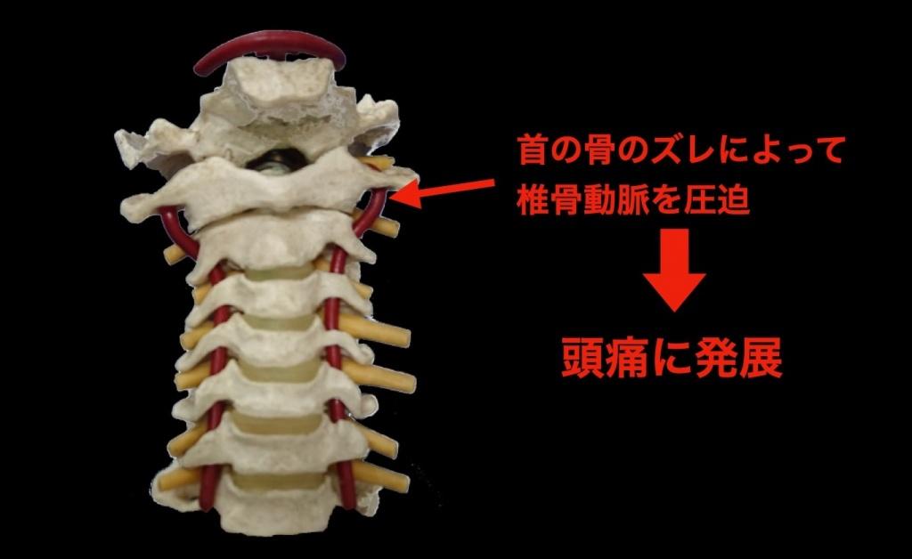 椎骨動脈の圧迫