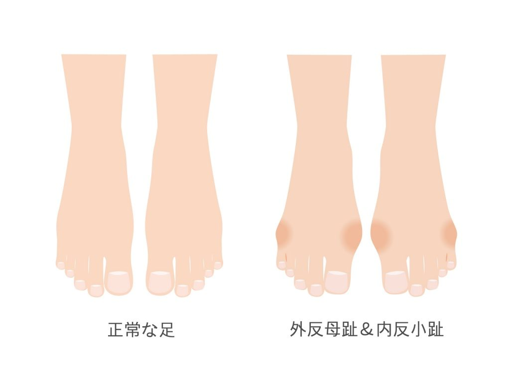 正常な足と外反母趾