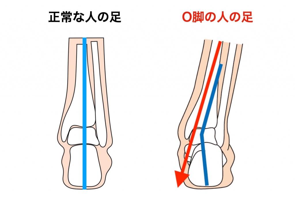 正常とO脚の足関節の違い