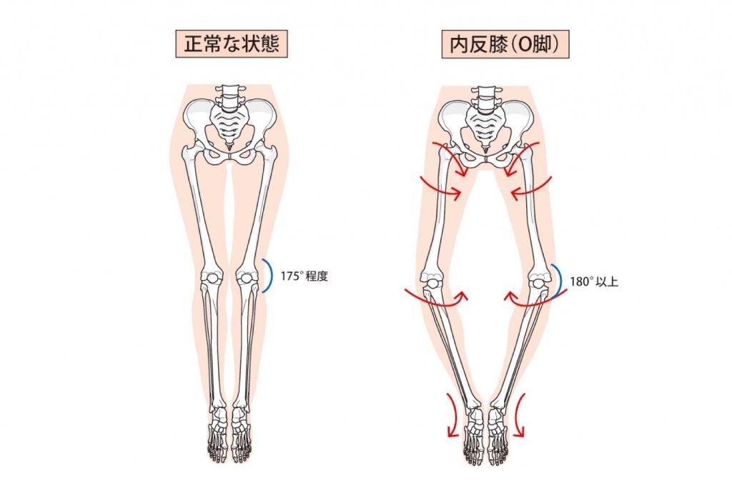 膝関節のアライメント異常