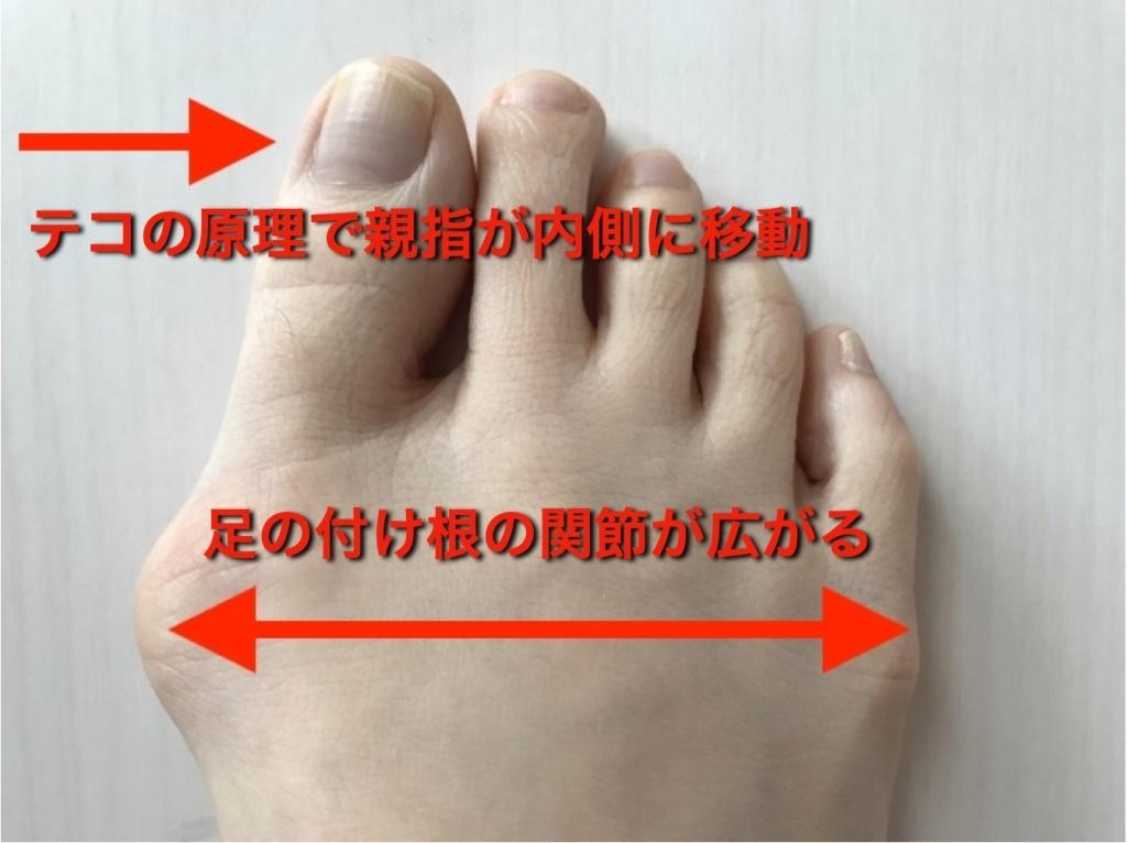 外反母趾親指の歪み