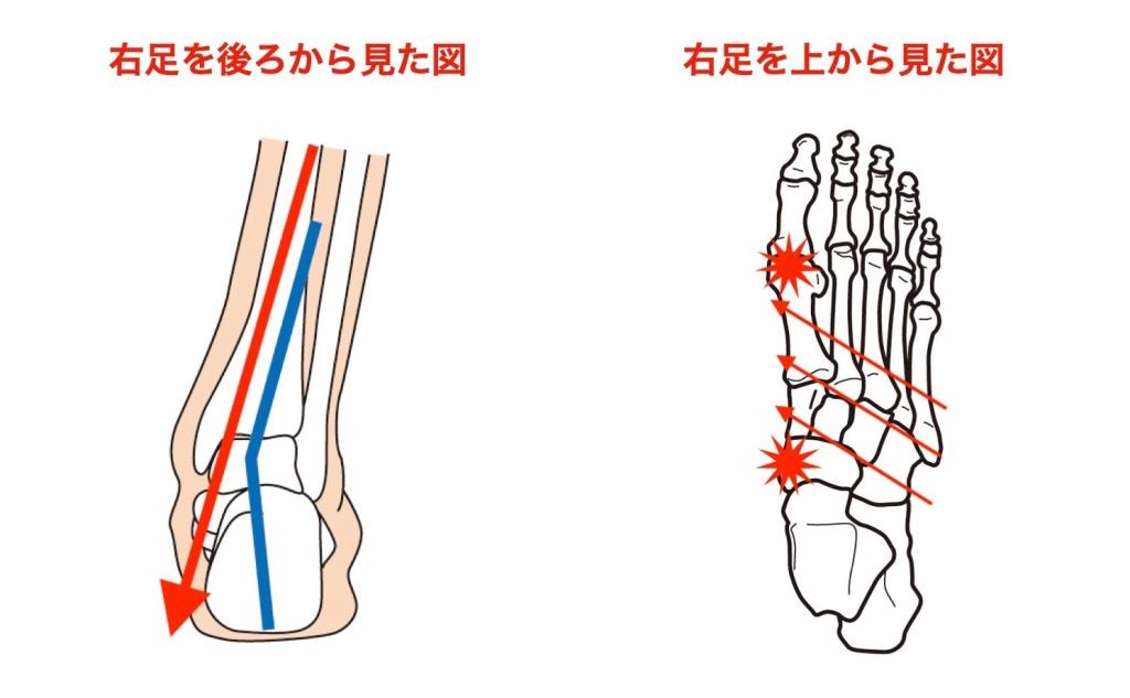 外反母趾足の歪み