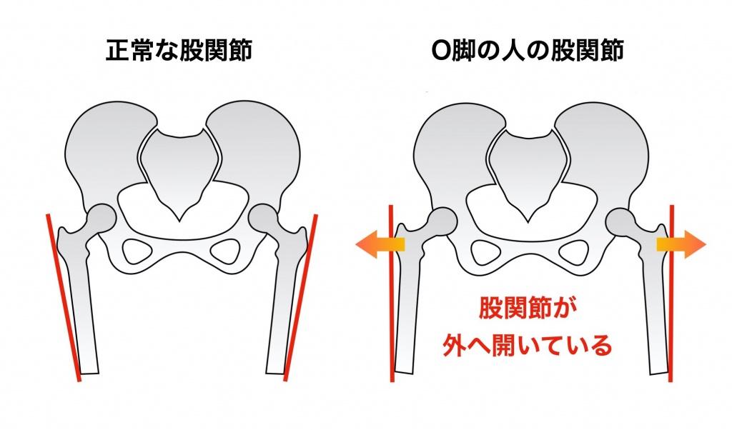 正常とO脚の股関節