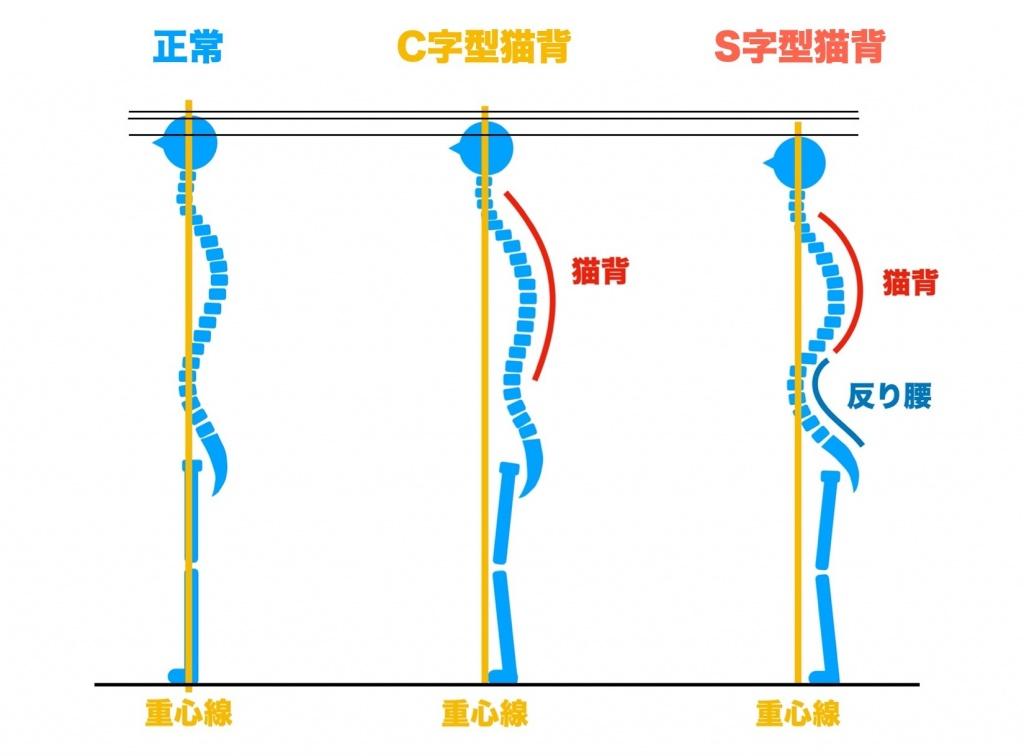 正しい姿勢と猫背の比較