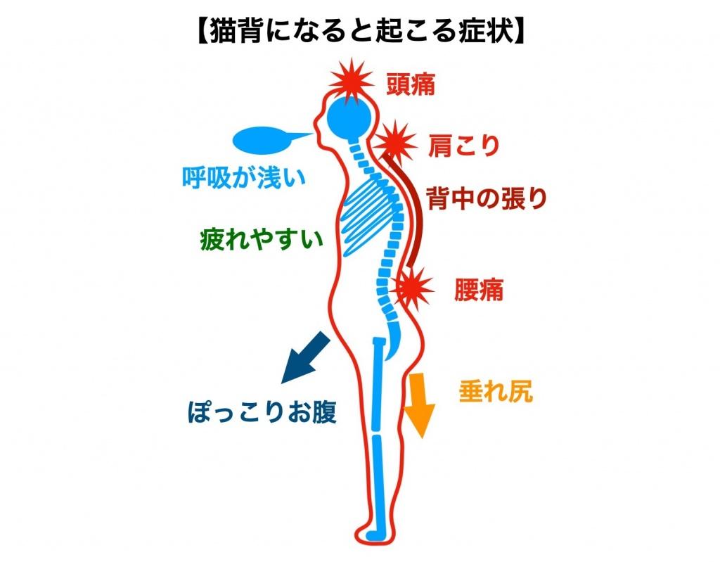 猫背になると起こる症状
