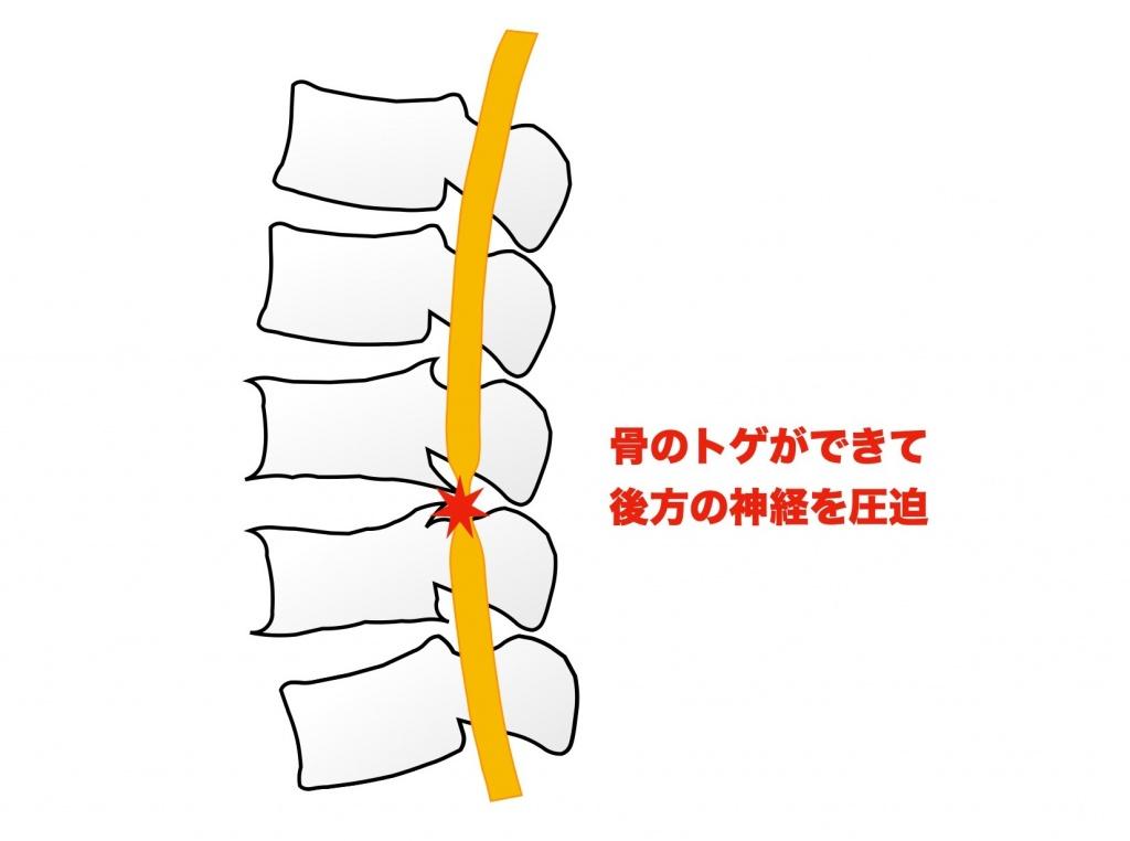 腰椎症画像