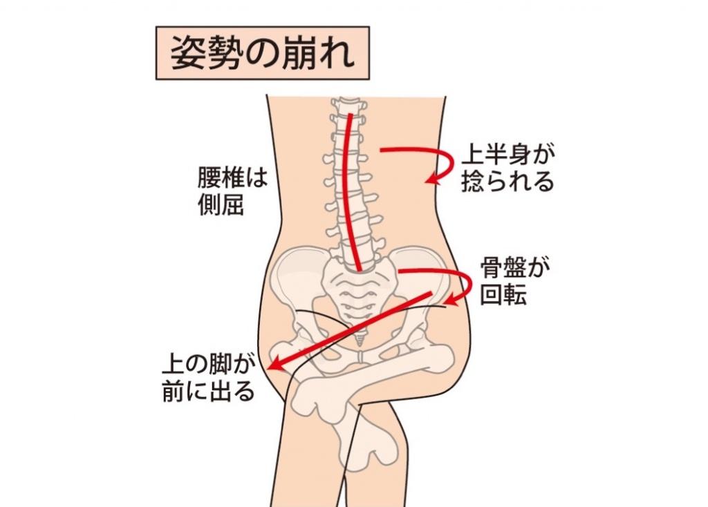 足を組んでいる時の骨盤の状態