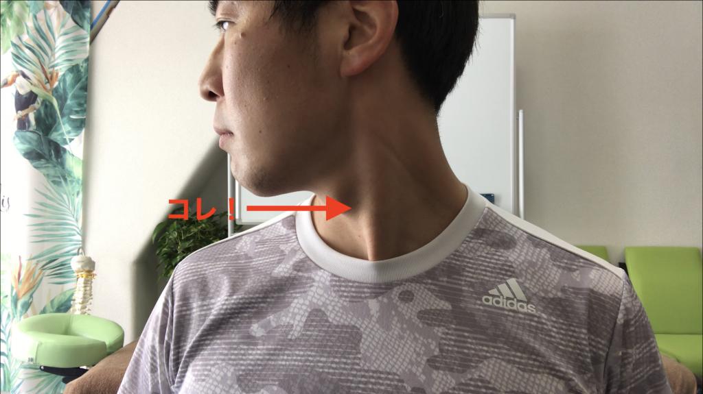 胸鎖乳突筋の位置