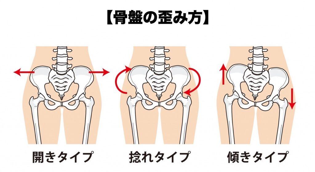 様々な骨盤の歪み
