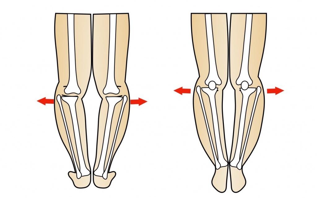 腓骨が外へ張り出した脚
