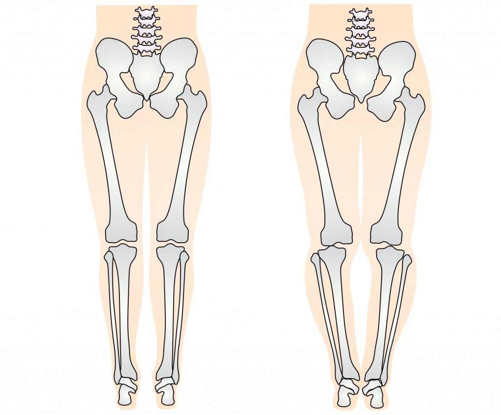 O脚の骨格
