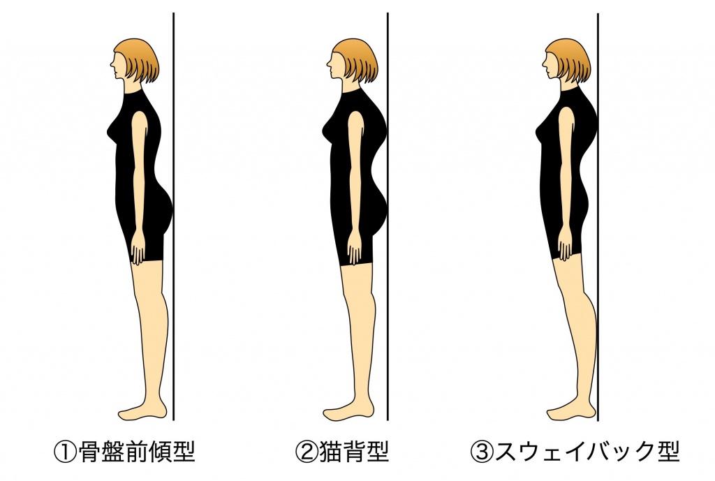 反り腰のタイプ