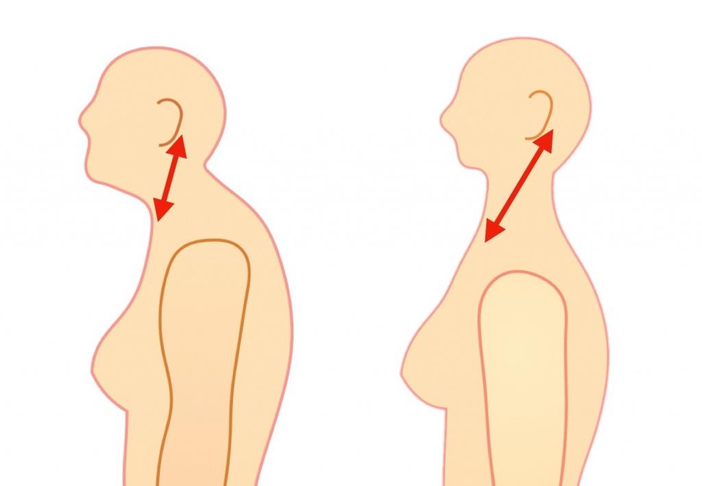 胸鎖乳突筋の短縮