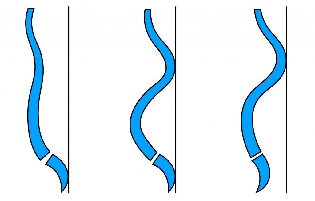 背骨の弯曲
