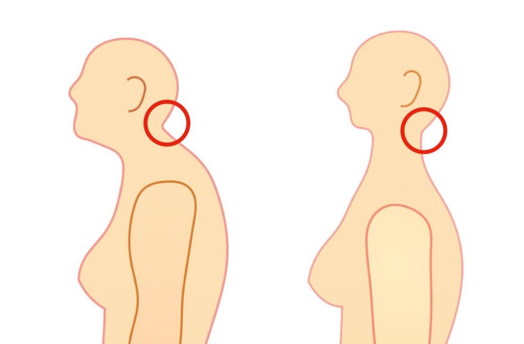 後頭下筋群の短縮