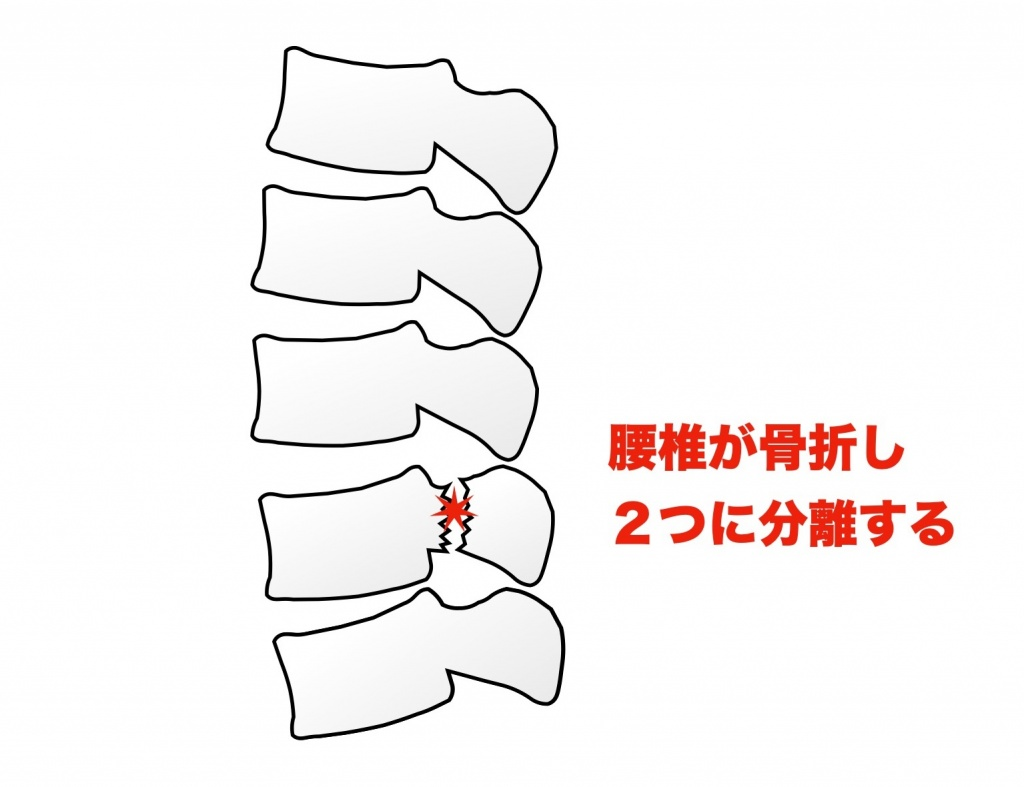 腰椎分離症