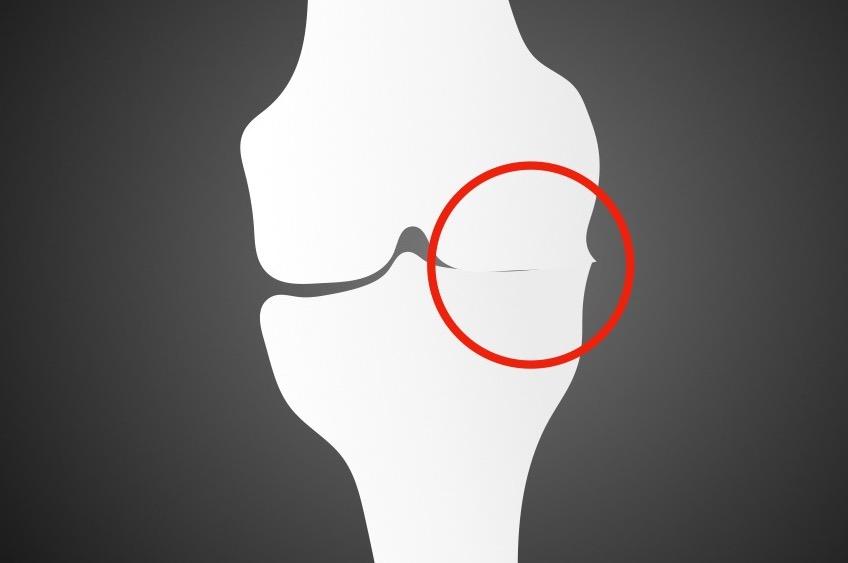 膝関節の変形