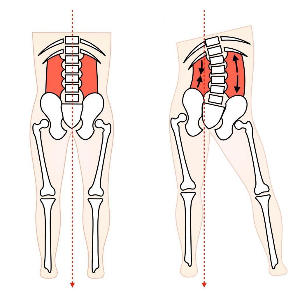 立つ時の骨盤の傾き