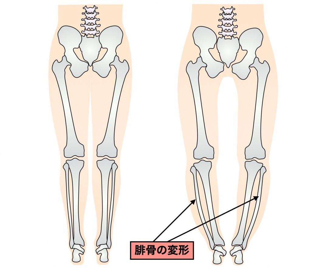 骨の変形によるO脚